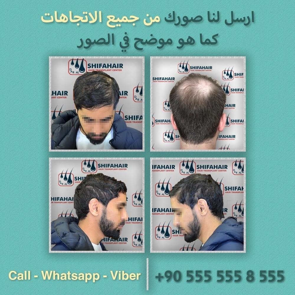الطبيب العالمي زراعة الشعر