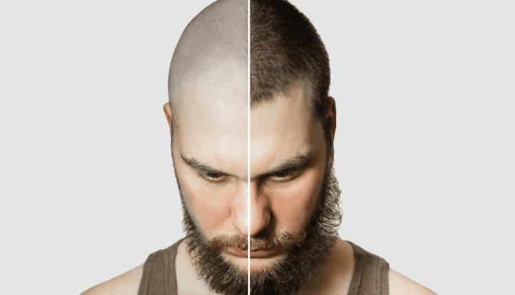 الصلع باستخدام زراعة الشعر تركيا