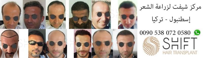 لزراعة الشعر بتركيا