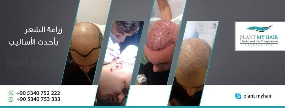 مركز بلانت لزراعة الشعر تركيا l
