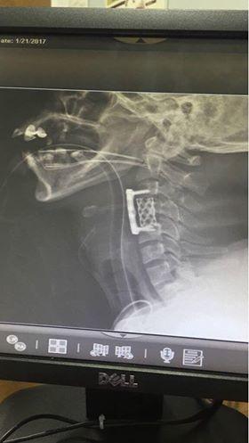 جراحه دقيقه بالمستشفى السعودي الالماني